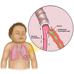 bronchiolitis_child